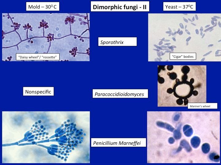 example of infection by dimorphic fungus
